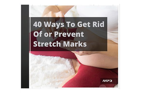 40-Ways-To-Get-Rid-Of-or-Prevent-Stretch-Marks